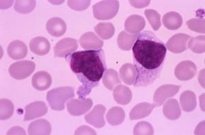 Mononucleosi incubazione