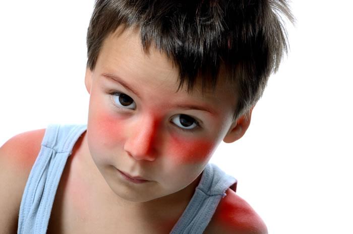 Mononucleosi sintomi adulti bambini
