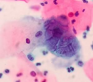 Herpesvirus umano 6
