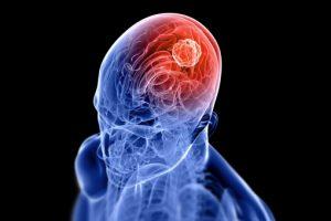 linfomi del sistema nervoso centrale