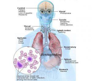 complicanze neurologiche in corso di mononucleosi infettiva