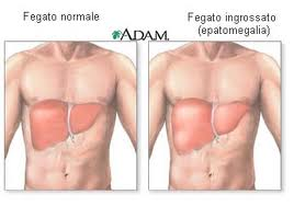 mononucleosi sintomi e cure