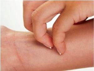 mononucleosi episodi di orticaria