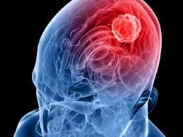 meningite virale