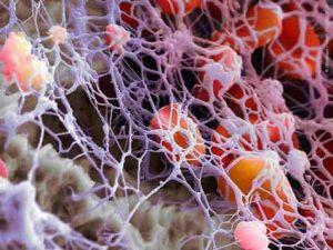 deficit da immunoglobulina selettiva